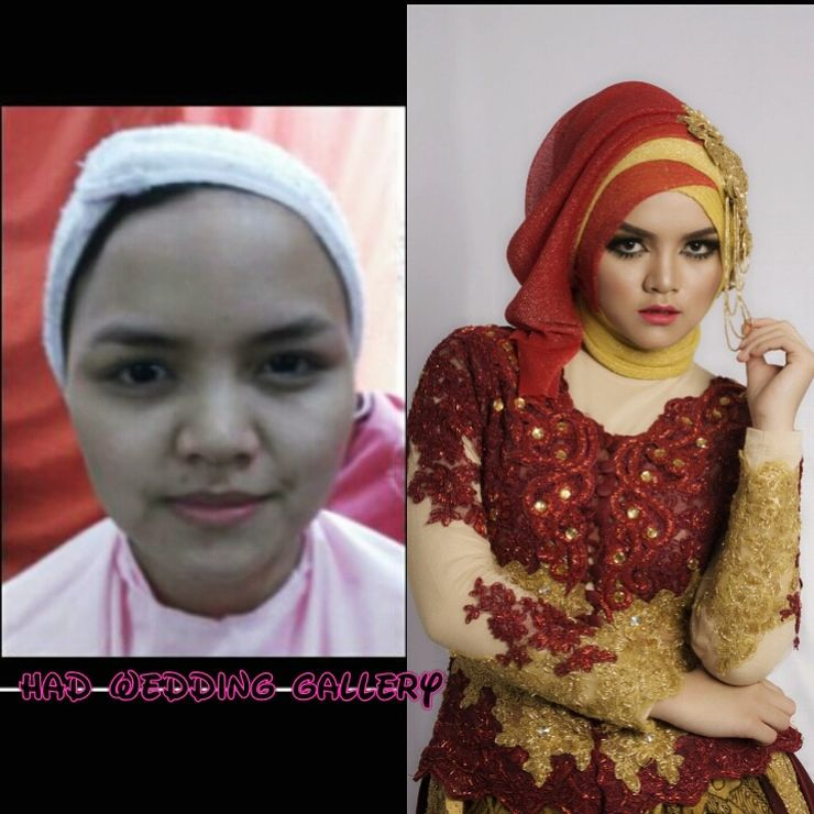 Before after inka